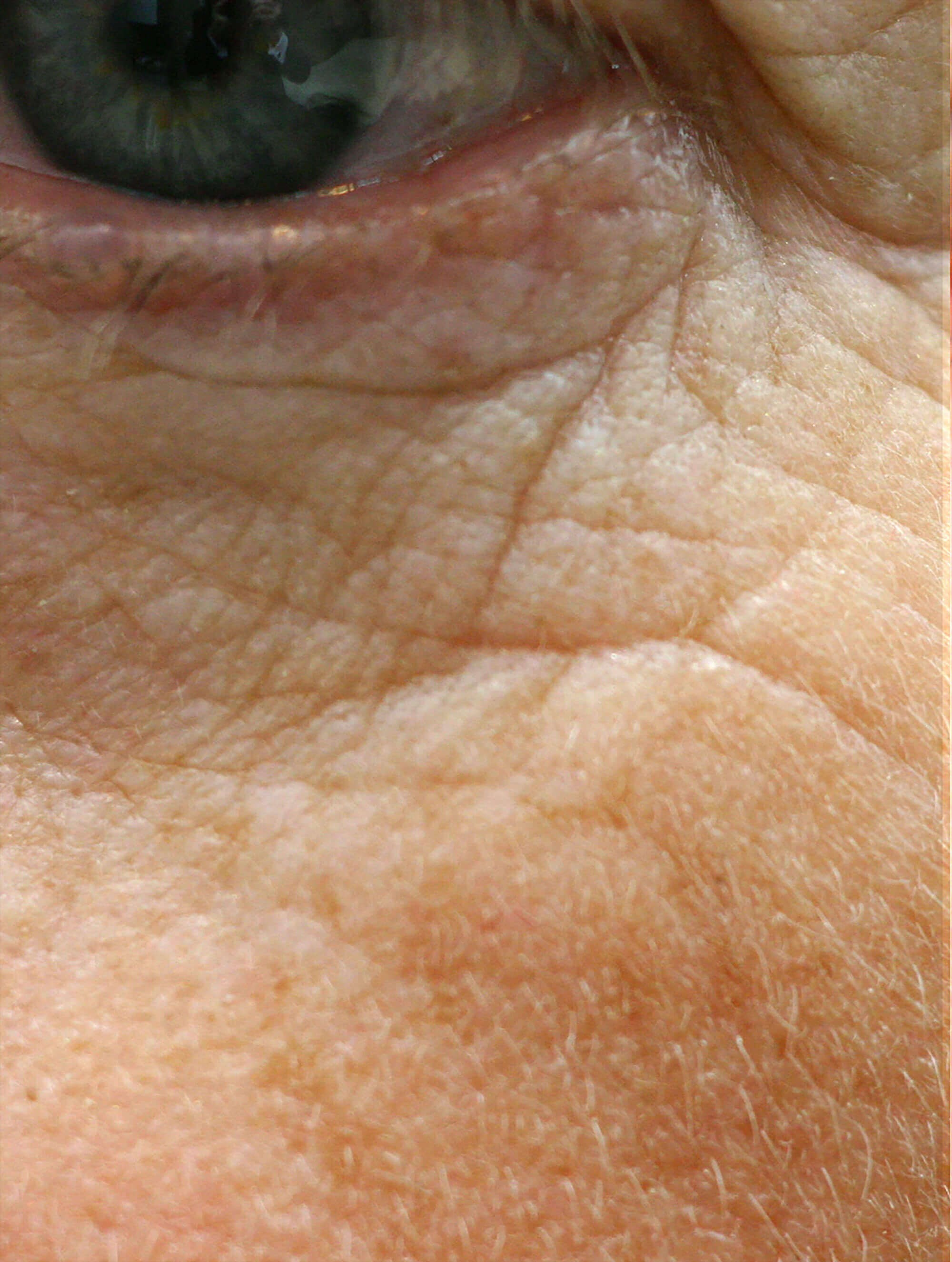 Close-up of Lower Eyelid Before Lower Eyelid