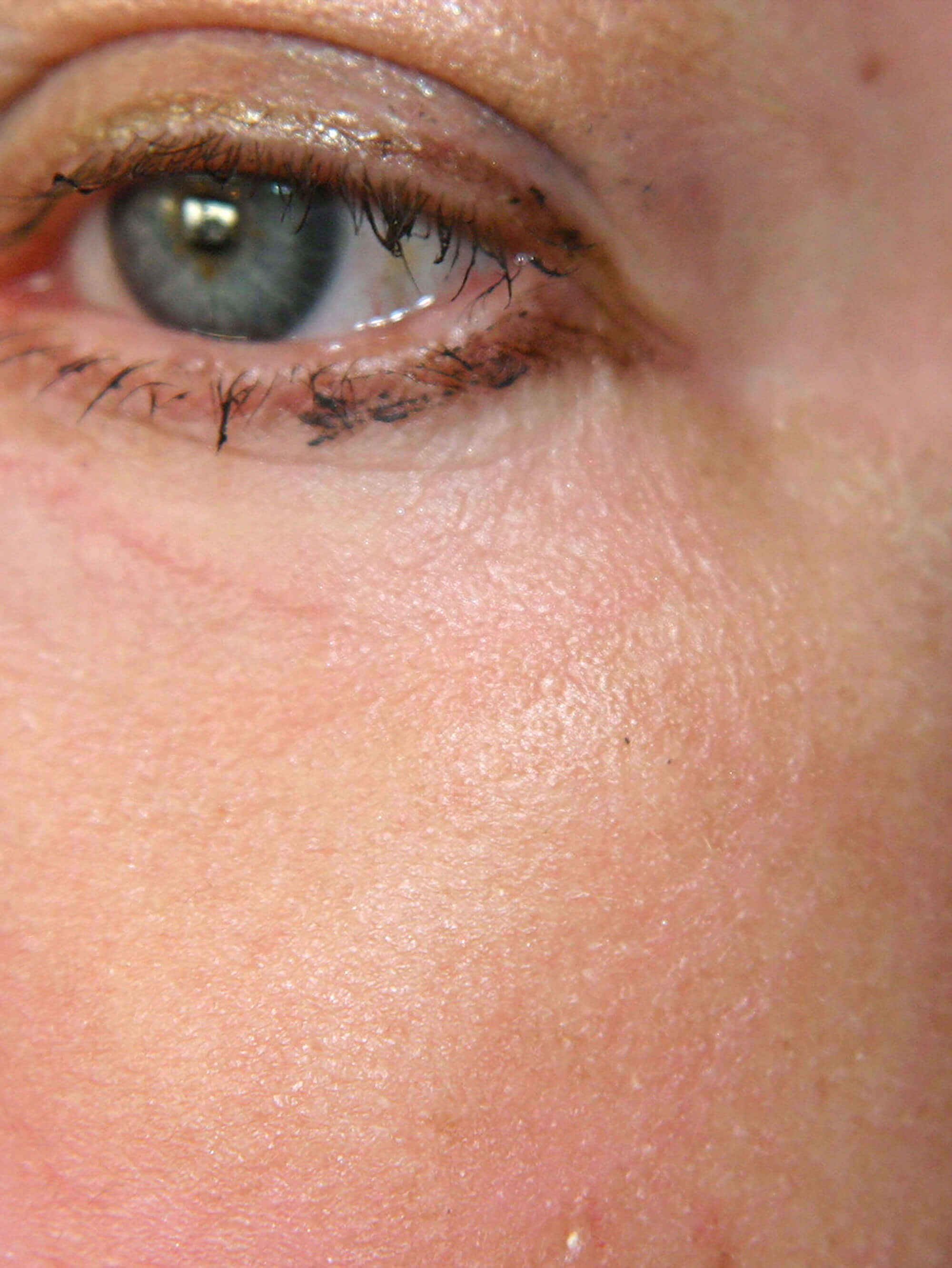 Close-up of Lower Eyelid After Lower Eyelid