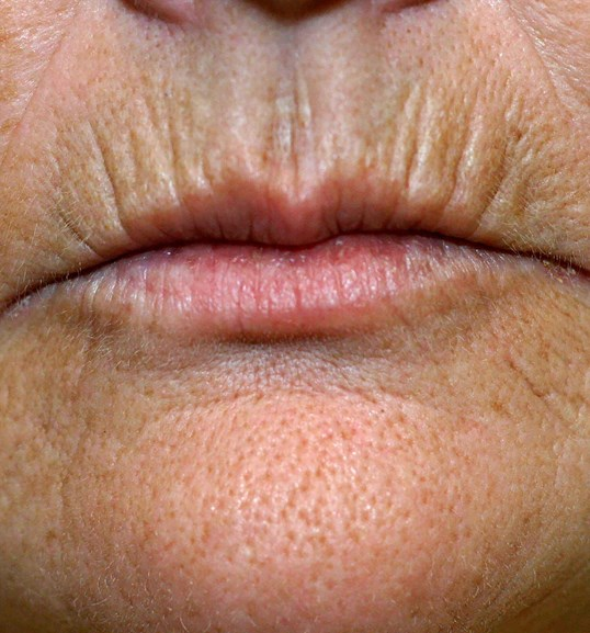 BensiPeel Lips Before Lips