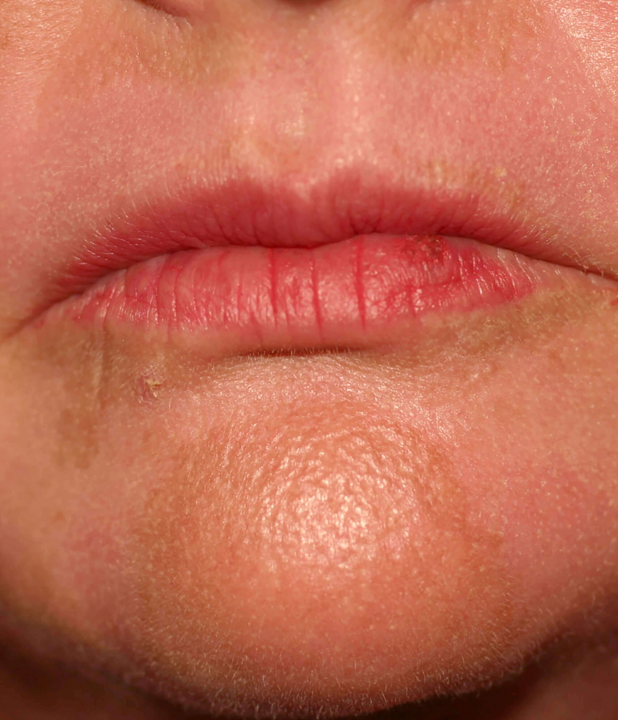 BensiPeel Lips After Lips