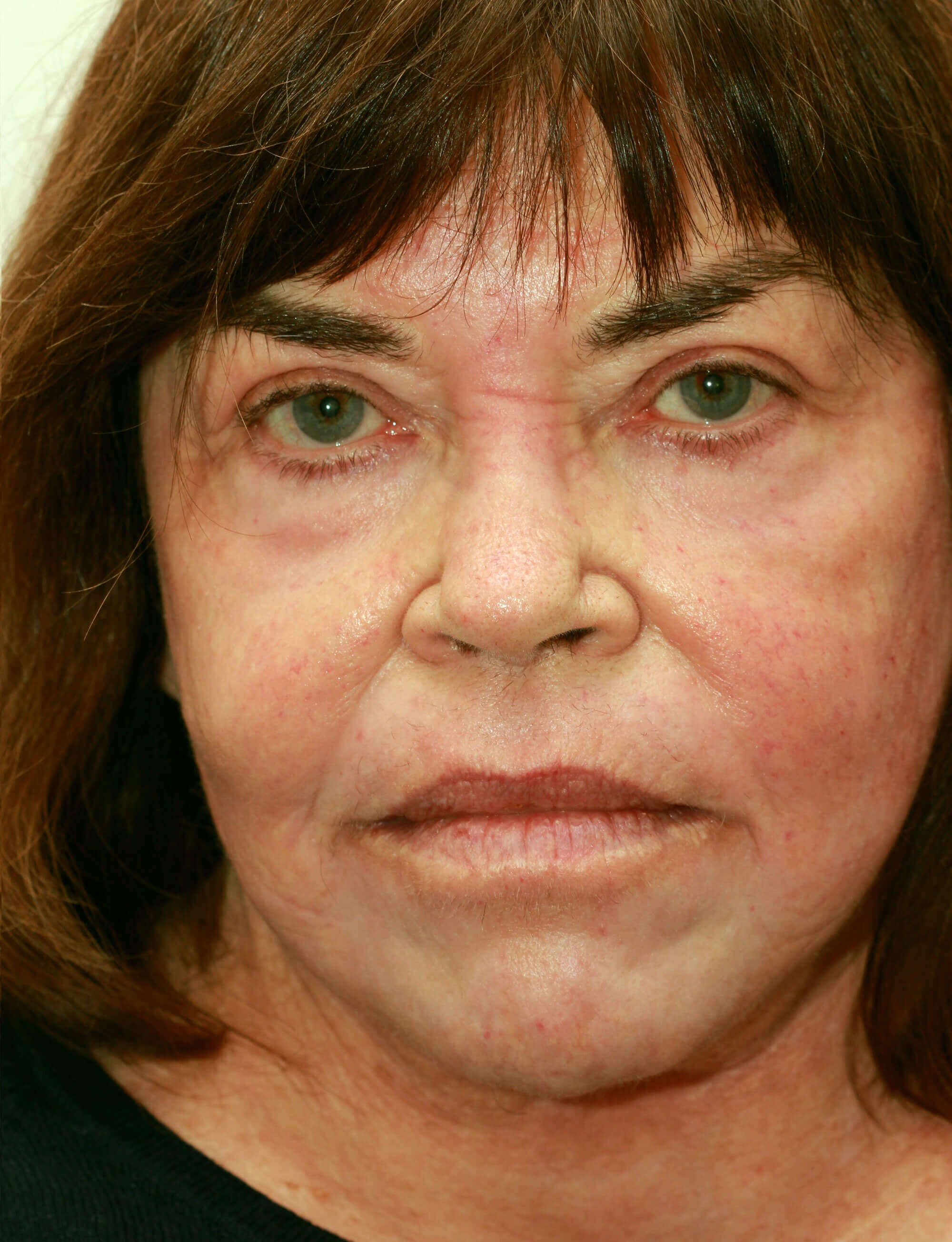 Facelift and BensiPeel After