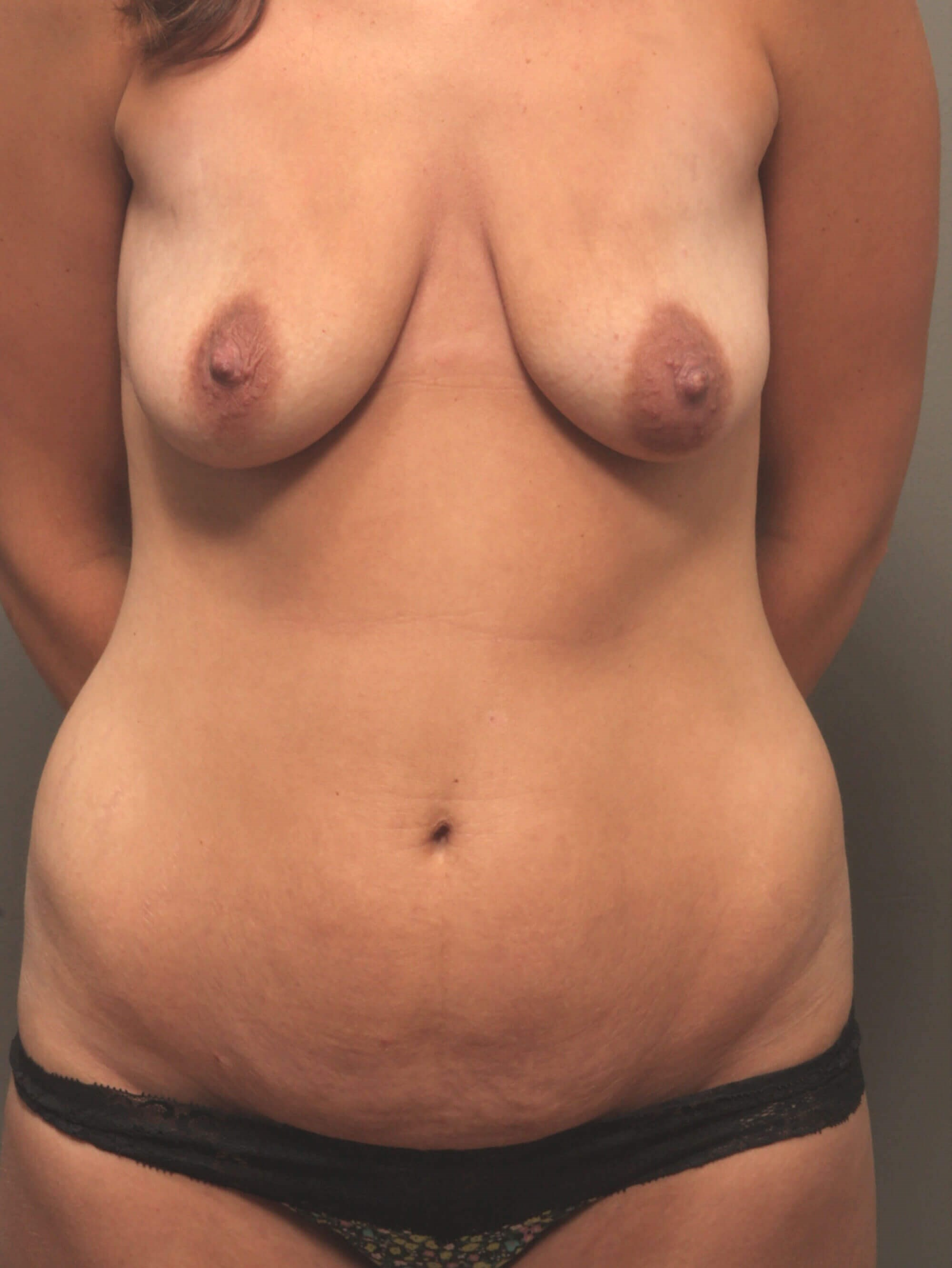 Front View with Tummy Tuck Before