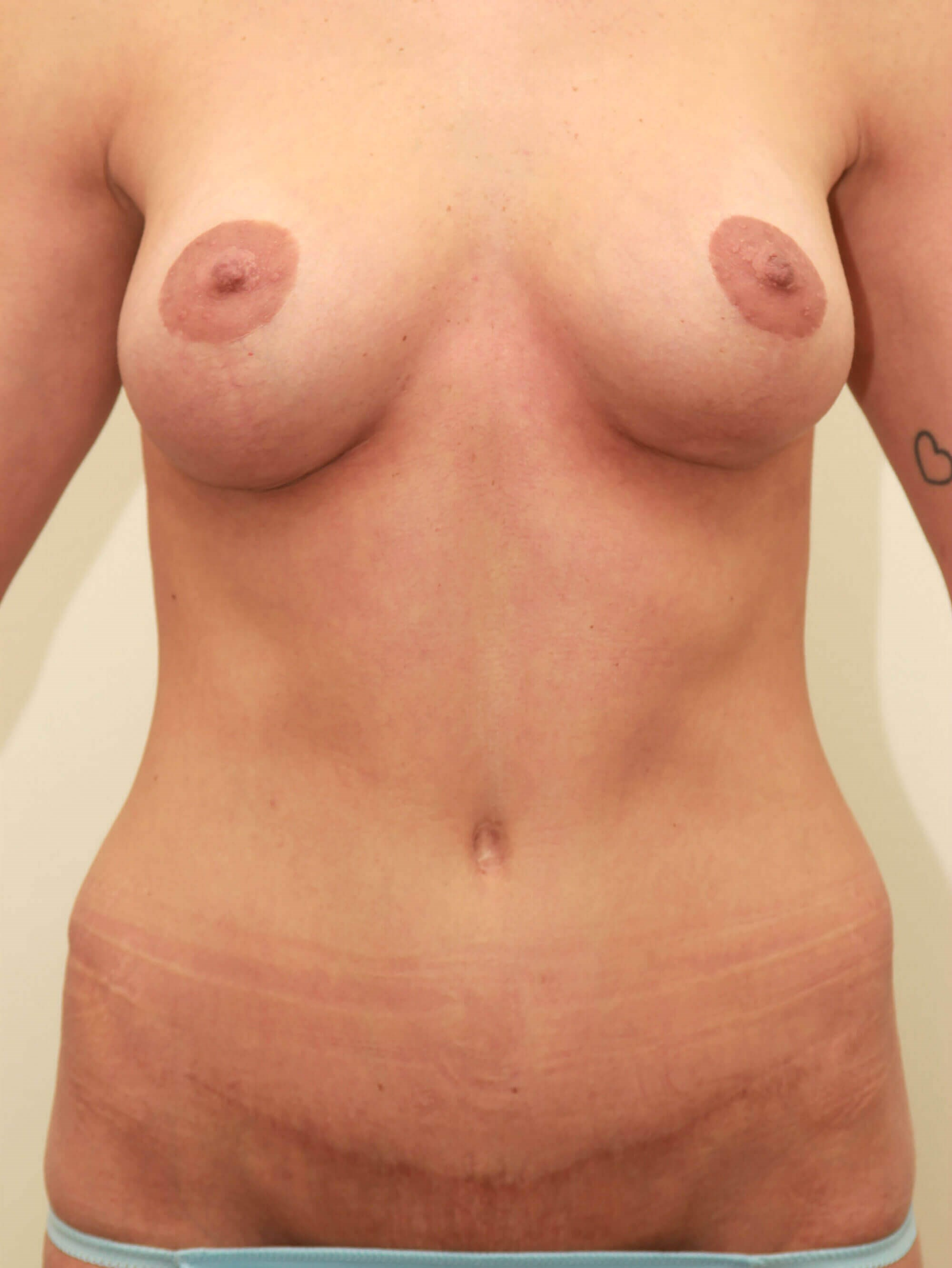 Front View with Tummy Tuck After