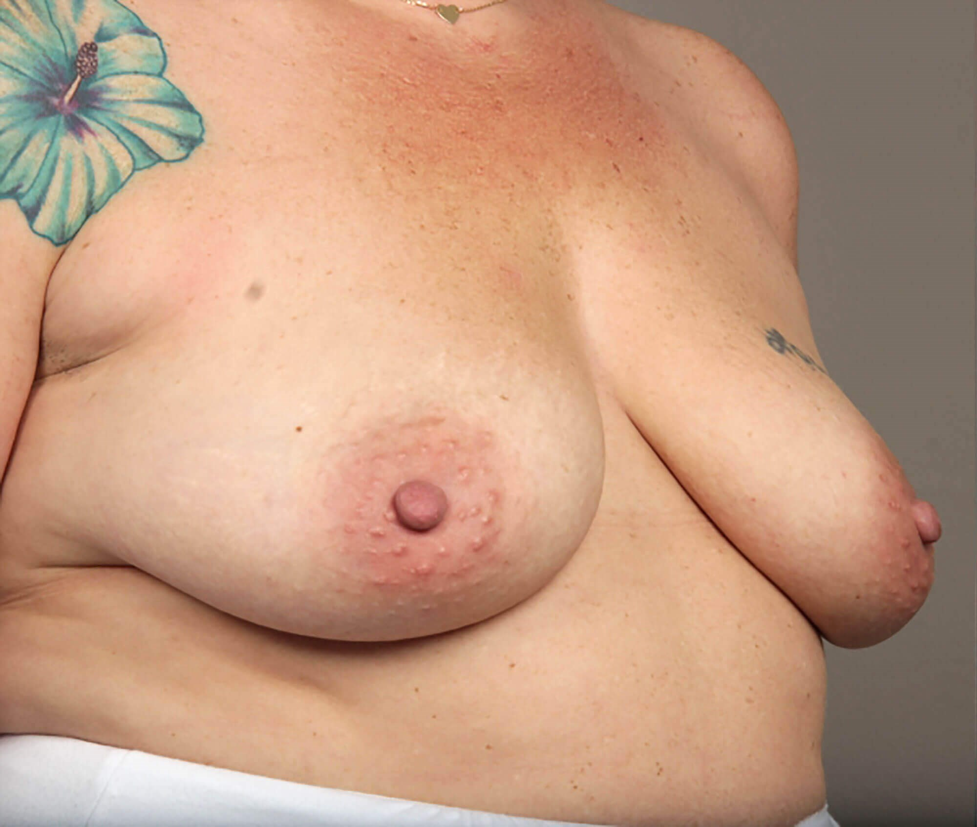 Breast Augmentation 3/4 View Before