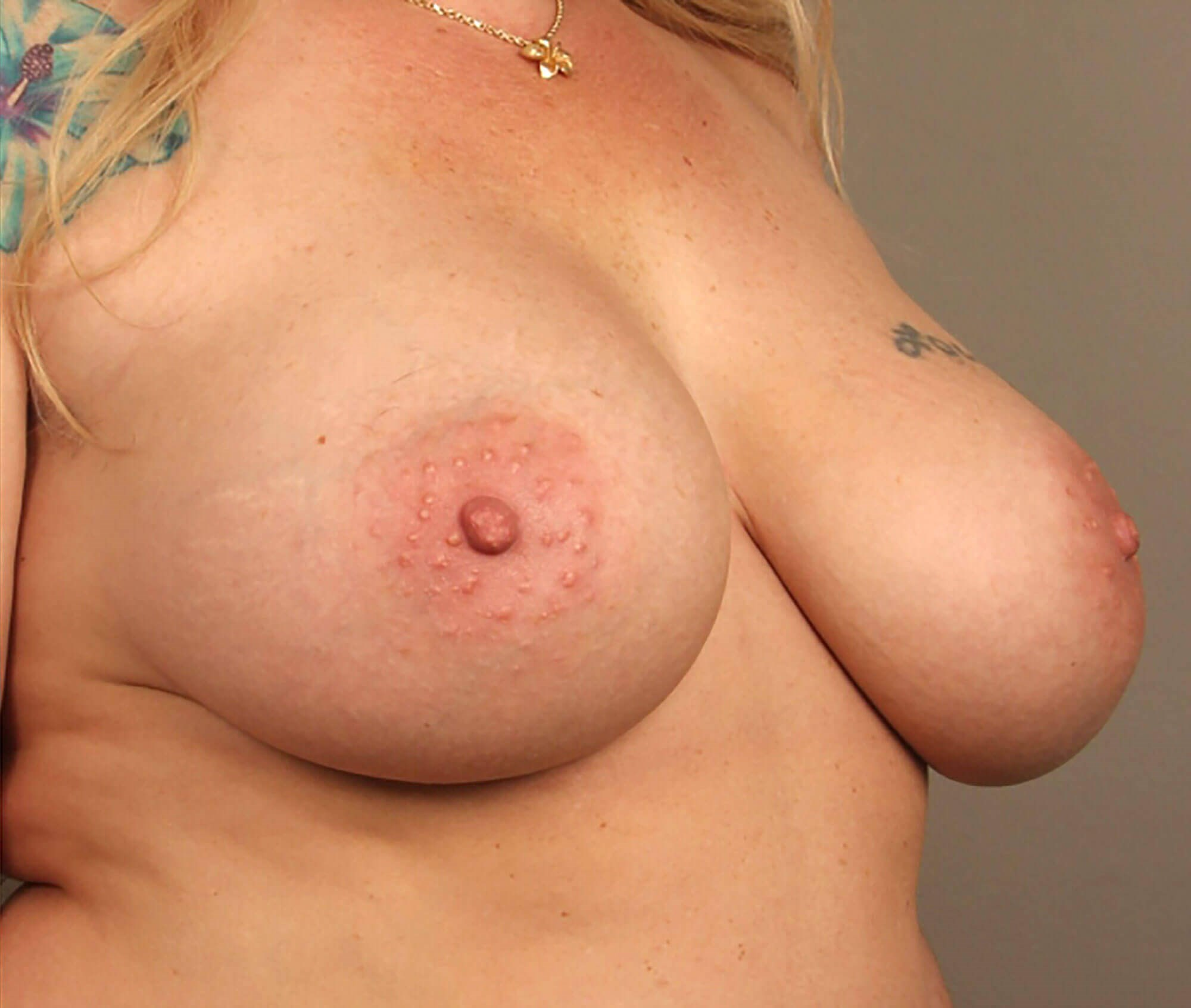 Breast Augmentation 3/4 View After