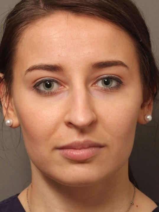 Rhinoplasty procedure performed on White Female Patient from Gresham