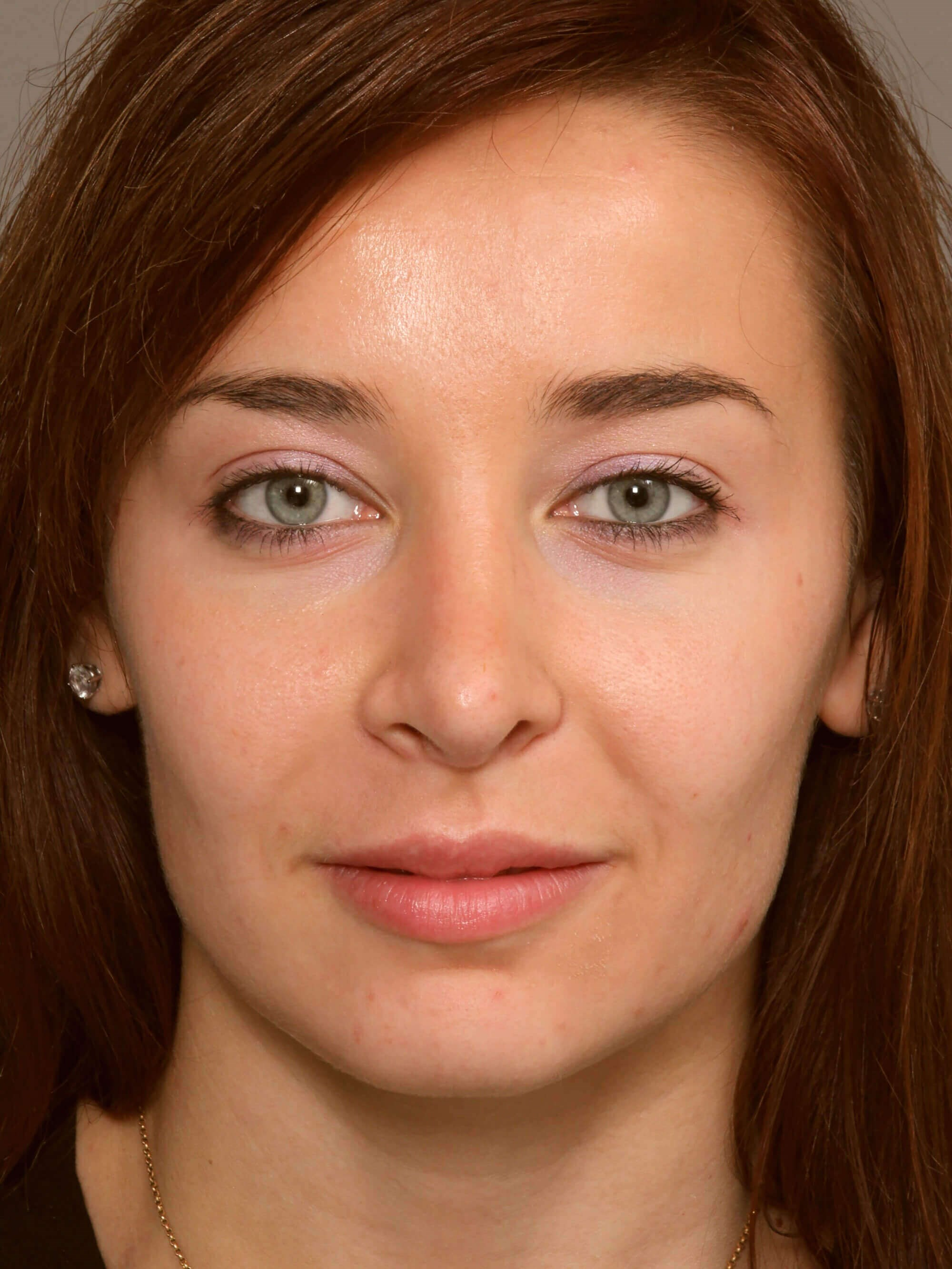 Rhinoplasty procedure performed on White Female Patient from
