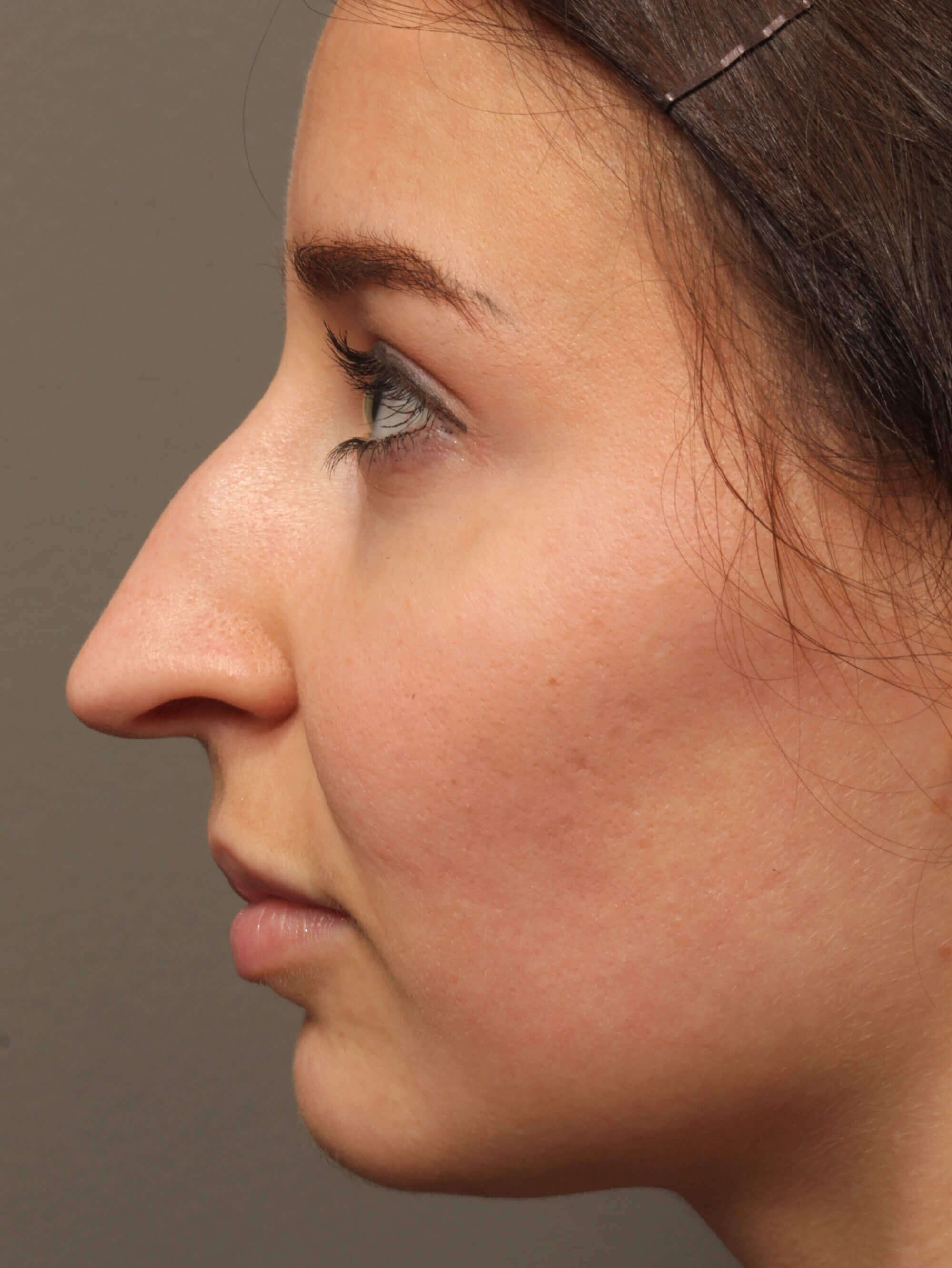 Rhinoplasty Sideview Before