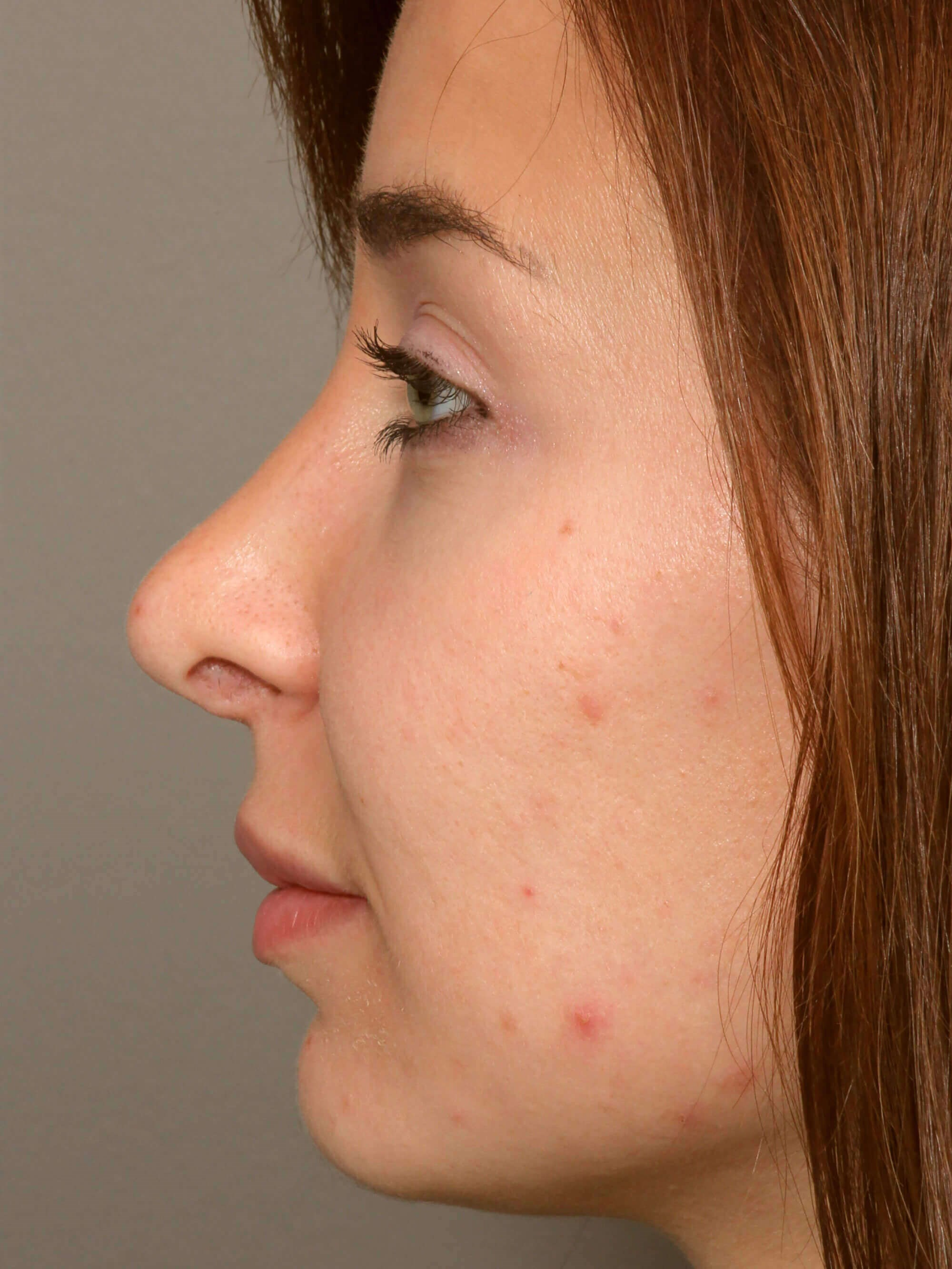 Rhinoplasty Sideview After
