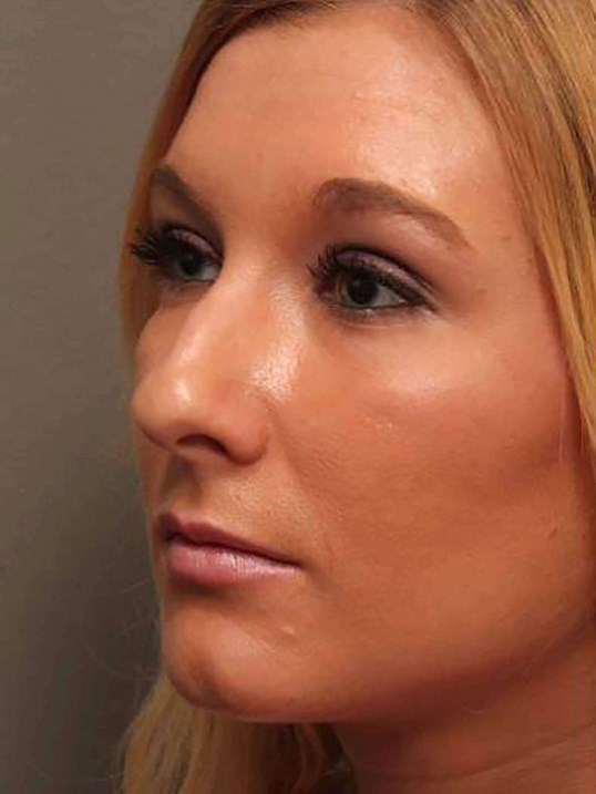 Rhinoplasty 3/4 view Before
