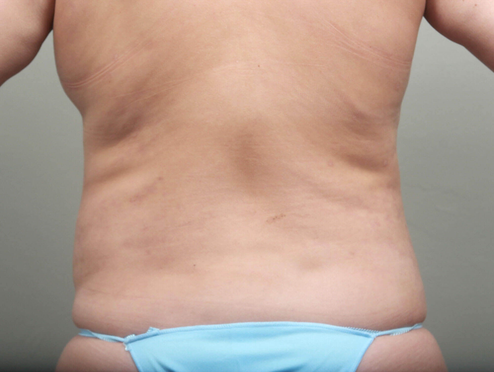 Liposuction Back View After