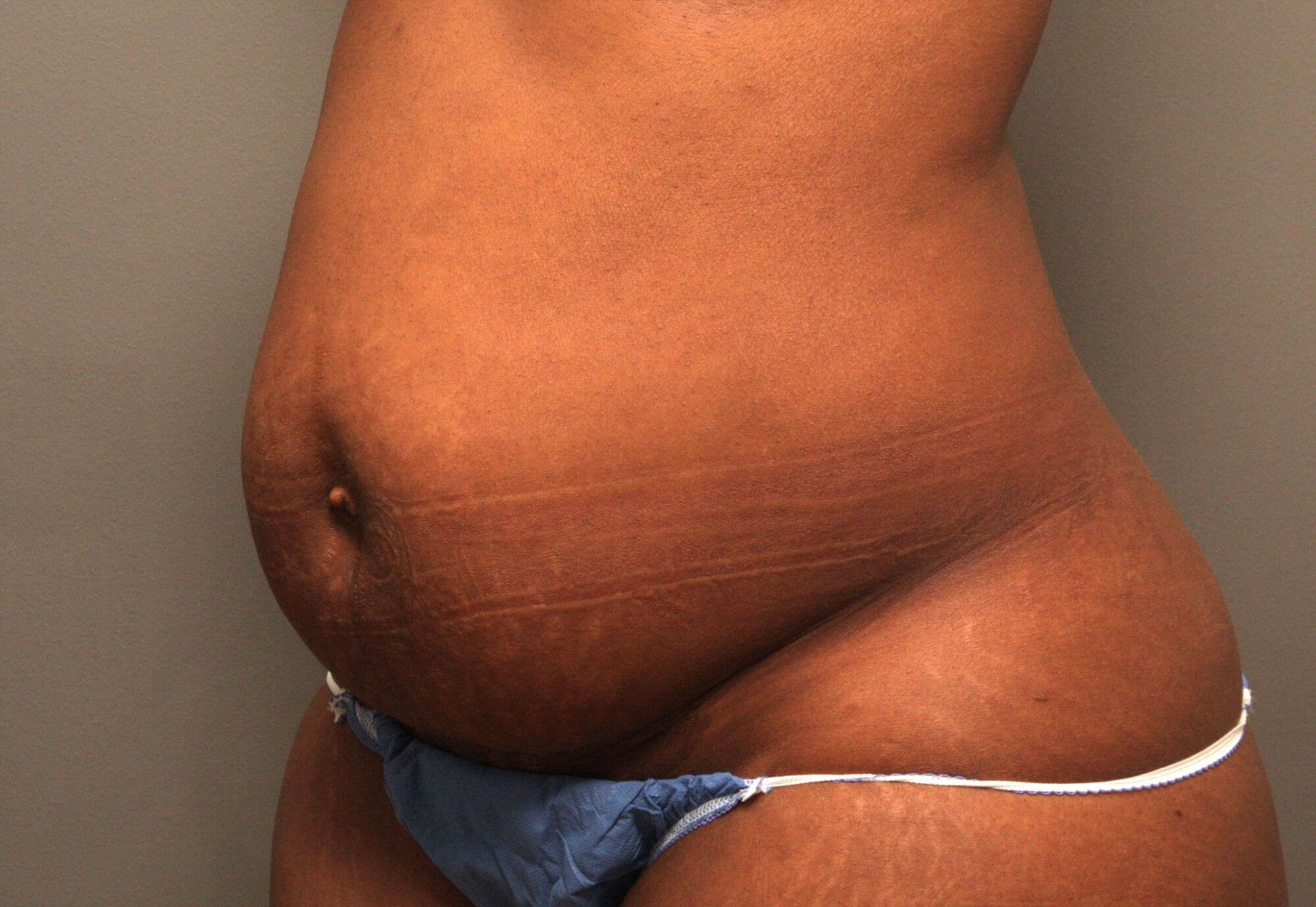 Tummy Tuck 3/4 View Before