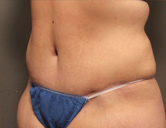 Tummy Tuck 3/4 View After