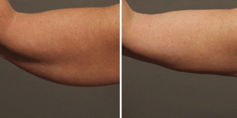 Arm Liposuction for Summer!